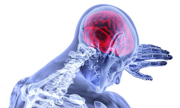 โรคเส้นเลือดในสมองตีบ